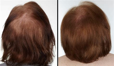 keranique before and after photos clinical results keranique hair regrowth treatment spray