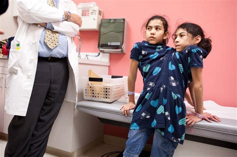 how do conjoined twins go to the bathroom conjoined twins refused surgery despite health challenges