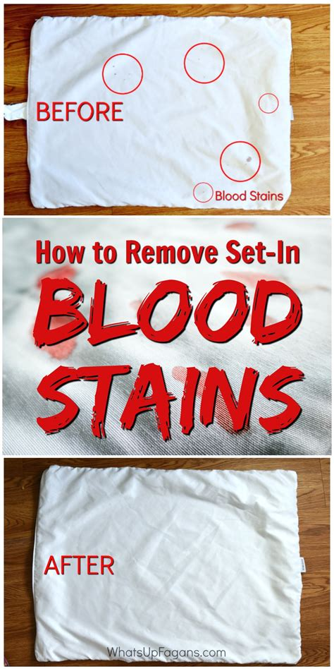 how to clean blood out of upholstery how to remove dried set in blood stains from clothes