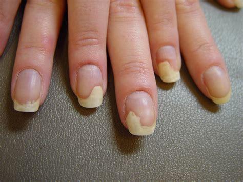 nail separating from nail bed skin diseases at university of south florida studyblue