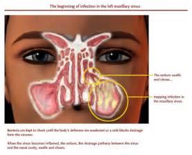Nova sinus center a new way to treat sinus trouble