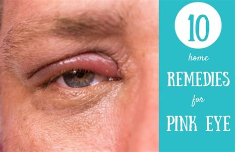pink eye home remedies