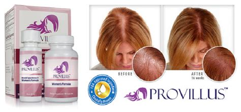treating hair fall women over 50 provillus a complete formula for preventing female