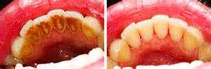 teeth cleaning san jose dentist teeth cleaning mangat dental center dds san jose dentist