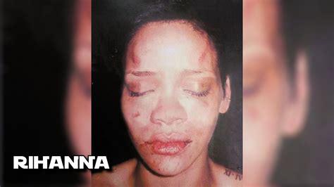 Imagenes Mujeres Golpeadas Por Hombres | 7 mujeres famosas maltratadas por sus parejas youtube
