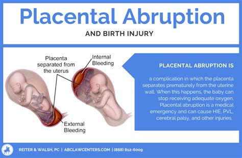 c section complications symptoms placental abruption birth injuries hie cerebral palsy
