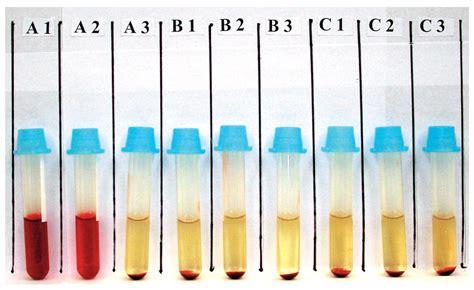 Pch Disease - donath landsteiner test causes symptoms treatment donath landsteiner test