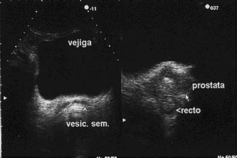 ecografia pelvica interna valor diagn 243 stico ultrasonido transrectal en el c 225 ncer