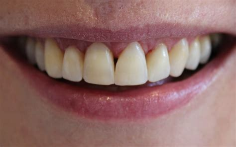 karen     teeth gaps spacing