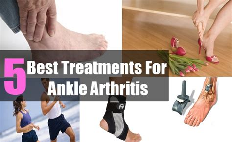 best treatment for rheumatoid arthritis treatments arthritis pains part 7