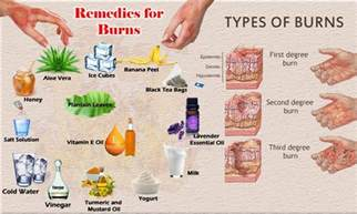 best 25 home remedies for burns ideas on