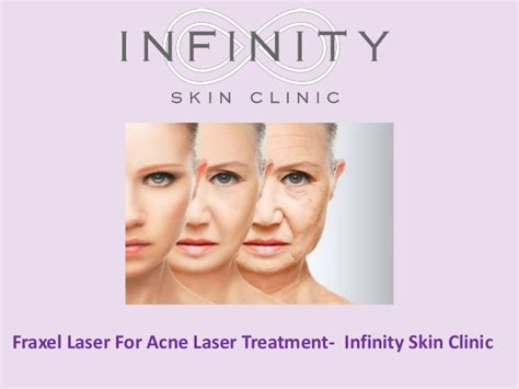 acne laser treatment the laser treatment clinic london fraxel laser for acne laser treatment infinity skin clinic
