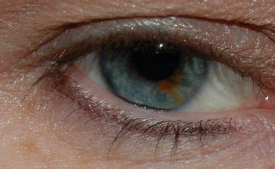 white spot on eye spots on the white of the eye livestrong