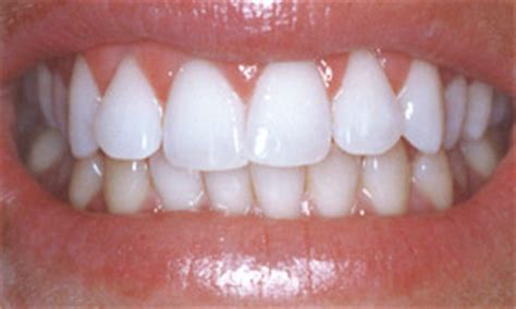 tooth whitening daniel h ward d d s