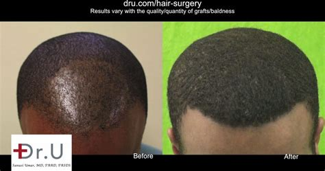 does fue hair transplant work video does fue work on african americans hair q a
