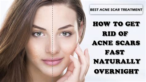 how to get rid of acne scars and pimples fast naturally
