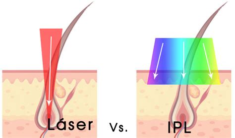 como elegir depiladora laser casera fotodepilaci 243 n ipl o depilaci 243 n l 225 ser 191 cu 225 l elegir nj