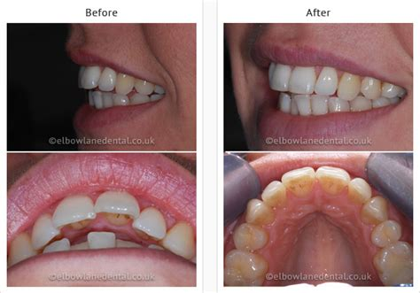 cosmetic dentist merseyside dental smile gallery  formby