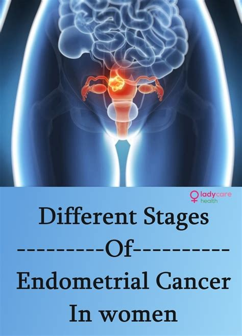 stages  endometrial cancer  women lady