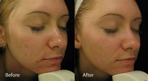red led light therapy for eczema dermalux led phototherapy treatments rachel hunter