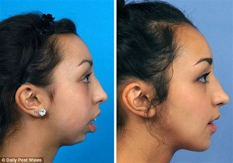 what to do with hair on womans jaw line before and after pictures reveal incredible transformation