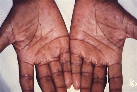 syphilis rash on hands pictures