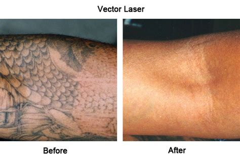 revlite tattoo removal laser removal liverpool by skinnotion