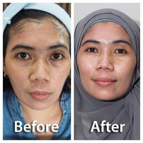 Pembersih Wajah Nu Skin dl slim skin care on quot before after tanam benang utk mngisi kekosongan di bagian