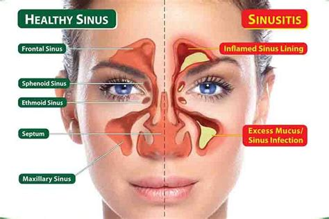 Can Detoxing Cause Sinus Inflammation by These Common Ingredients And 15 Minutes To Kill A Sinus