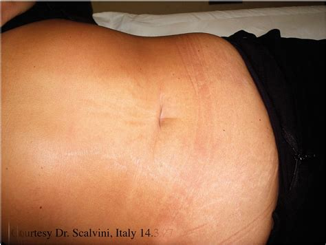 Stretch Marks by Dermaroller Treatment With Dr Johnson In Cheshire Middlewich