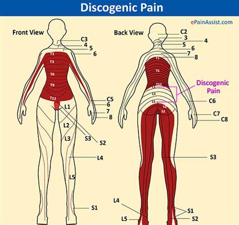 lumbar disc bulge|causes|symptoms|treatment  manual