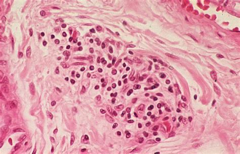 Basic Histology More Lymphocytes In Tissue Section