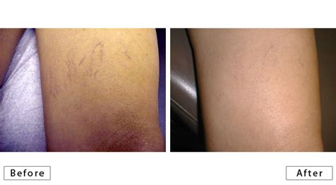 laser tattoo removal new orleans new orleans skin doctor dermatology photo gallery