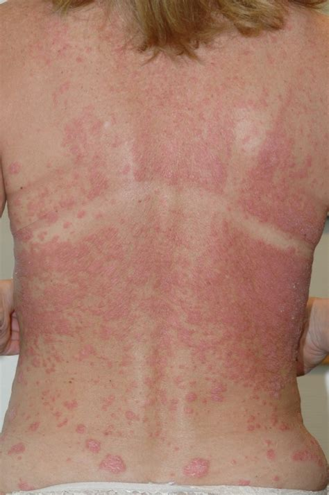 psoriasis a comprehensive guide on how to live well with