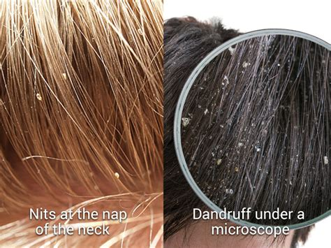 dec plugs what is a dec plug hair how lice spreads faq lice removal