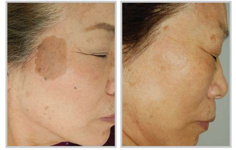 what is light treatment pulsed light skin secrets center