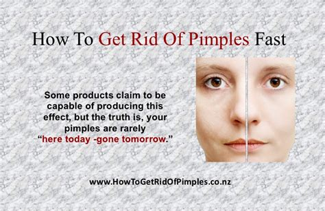 Detox To Get Rid Of Acne by Slides How To Get Rid Of Pimples Fast