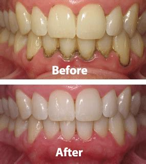 gingivitis treatment laser periodontal disease laser dentist helen ragsdale dds