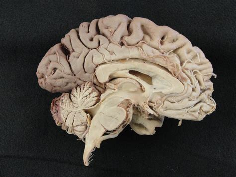 midsagittal section of human brain alien explorations exles of midsagittal cutaway brains