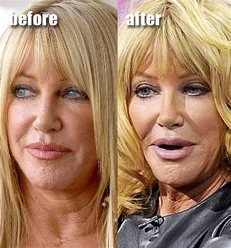celeb before and after pics celebrity plastic surgery before after 56 pics