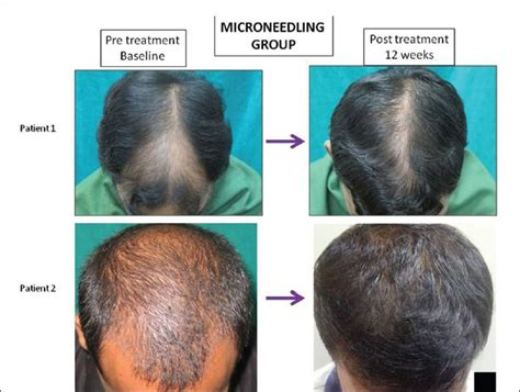 tc plus for bald spot and thinning hair behandelingen gt microneedling therapie met dermaroller