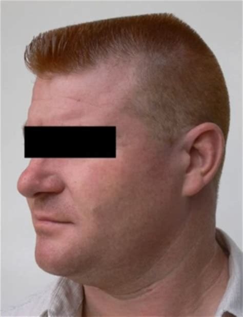 bad haircuts for men haircuts models ideas