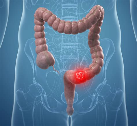 And Cancer how destroys ovarian and colon cancer