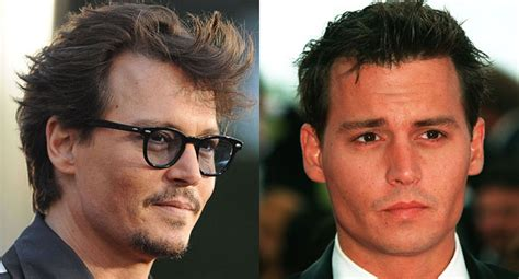 celebrity hair transplants before after johnny depp hair transplant revelations his hair clinic
