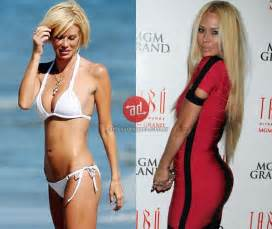 Vanity Buttocks Injections 187 Celebrities With Buttock Augmentation Before And After