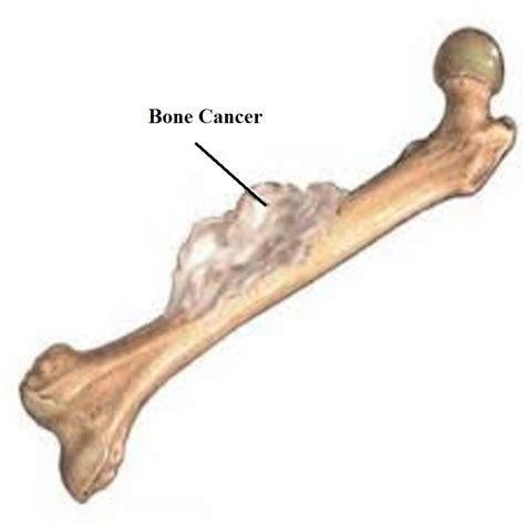 and bone bone cancer symptoms types causes and treatment mediologiest