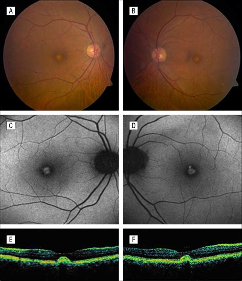 pattern dystrophy fluorescein angiography association of pattern dystrophy with an htra1 single