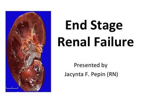 renal failure study end stage renal failure