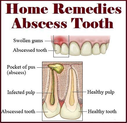home remedies for abscess tooth nature s child