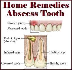 home remedies for tooth abscess home remedies for abscess tooth nature s child